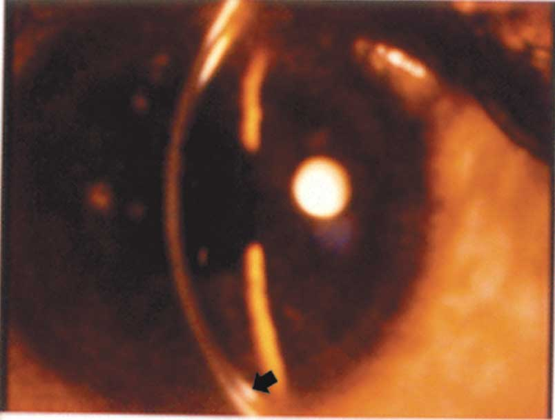 The Kayser Fleischer Ring Around Periphery Of Cornea Ca By Scientific Diagram