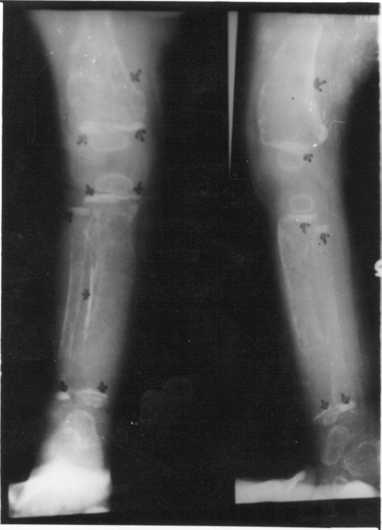 indian pediatrics editorialx ray of the lower limb showing (i) diffuse osteoporosis with moth eaten cystic areas in the lower end of femur, (ii) metaphyseal bands of increased